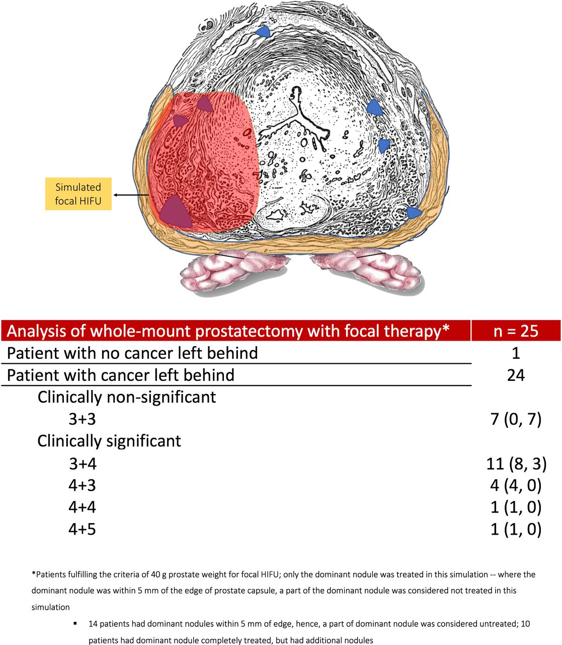 The Precision Prostatectomy An Ideal Stage 0 1 And 2a Study